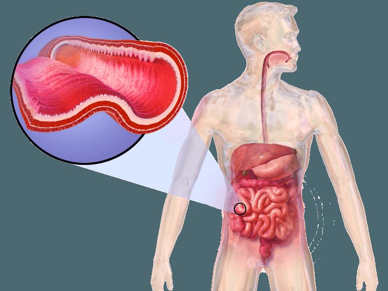 �� Crohnova choroba a bolesti kloubů: Jaké je spojení?